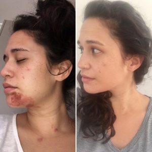 Skin LED Treatment